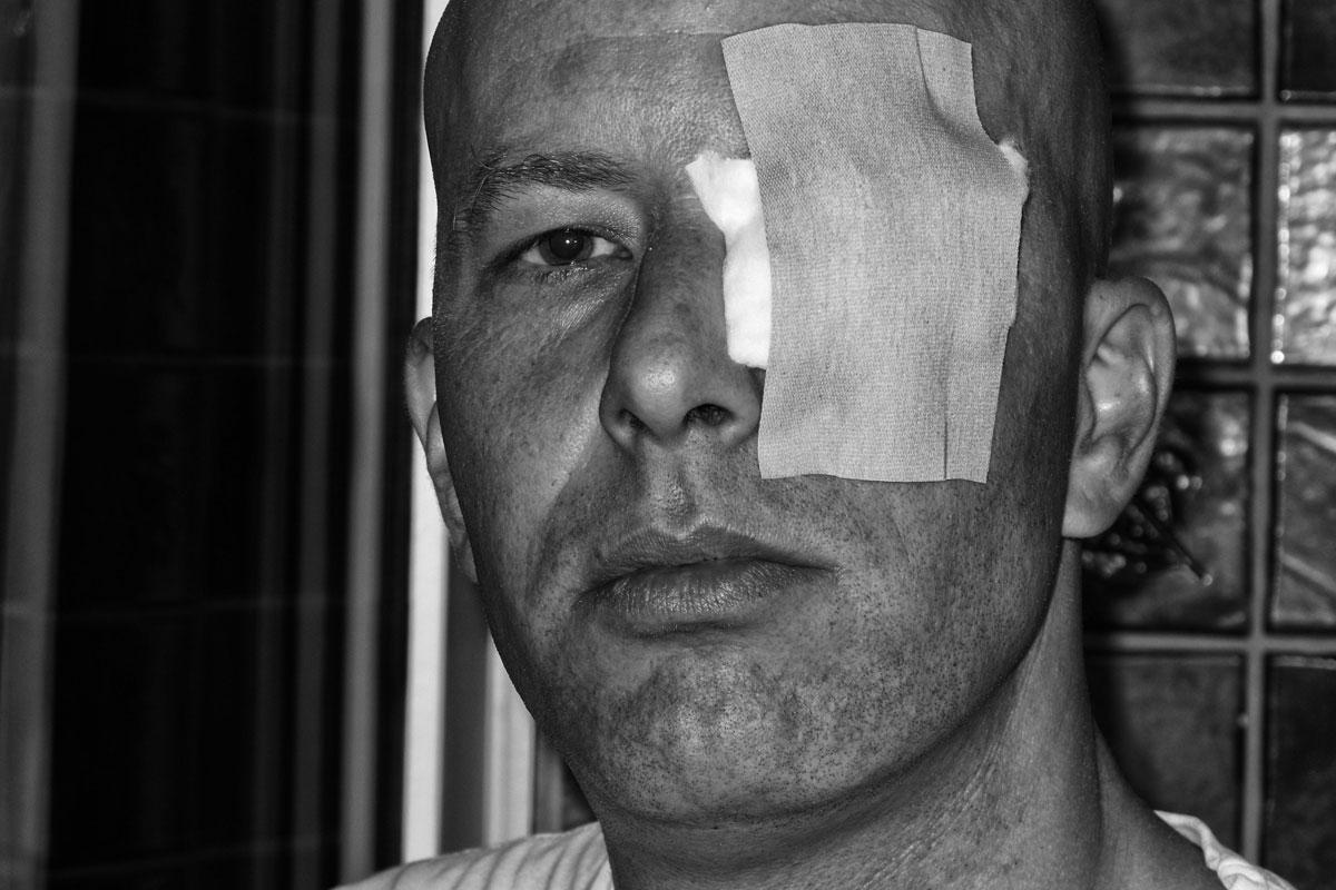 selbstporträt mit verletzung am auge